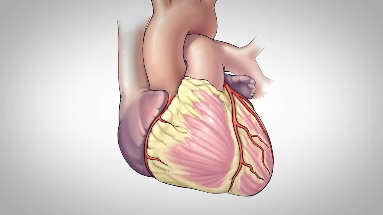 Singapore Coronary Artery Bypass Surgery – Is it a Good Experience?